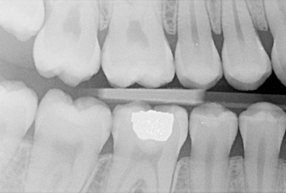 Radiografía intraoral